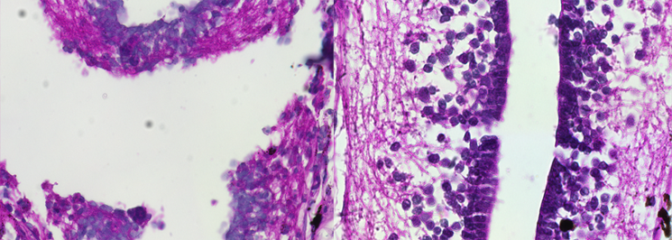 An H&E staining of a spinal cord at 2 and 30 days post-transection