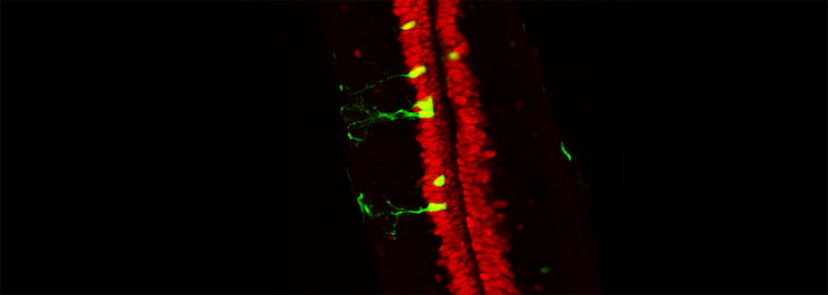 A spinal cord from a regenerative stage Xenopus tadpole stained for Sox2 (red) and electroporated with a Sox3::GFP reporter